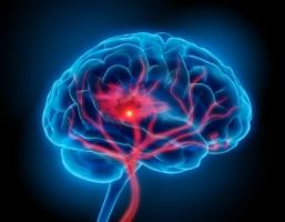 Unexplained brain syndrome grips Canada, 48 people affected