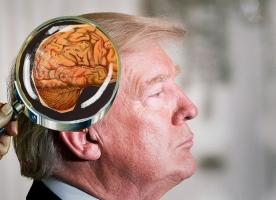 Donald Trump's mental health becomes an issue again